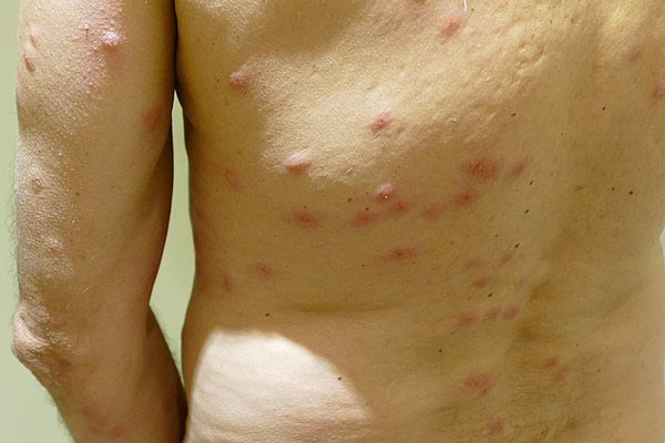 Picture of a person's back and arm covered with bed bug bites